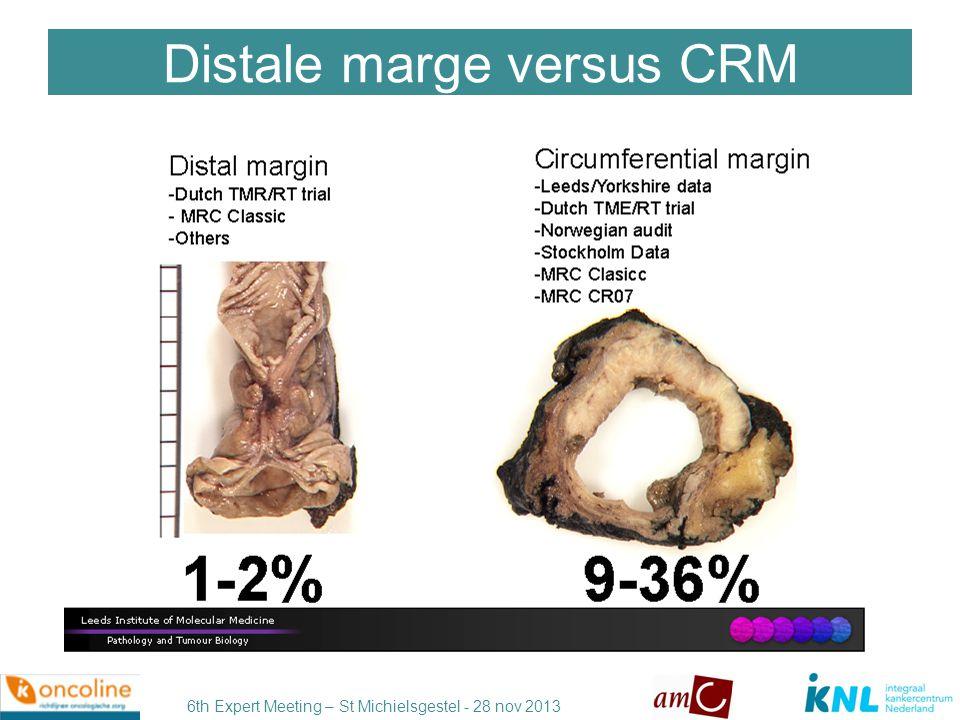 Distale marge versus CRM