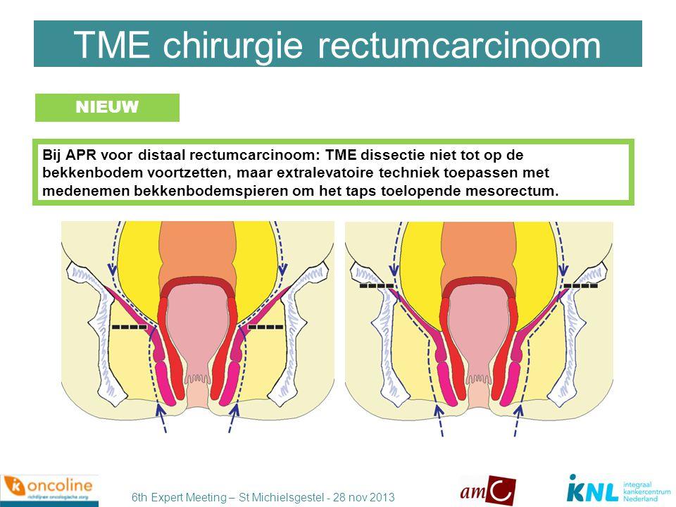 TME chirurgie rectumcarcinoom