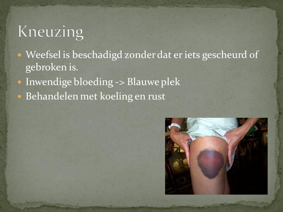 Kneuzing Weefsel is beschadigd zonder dat er iets gescheurd of gebroken is. Inwendige bloeding -> Blauwe plek.