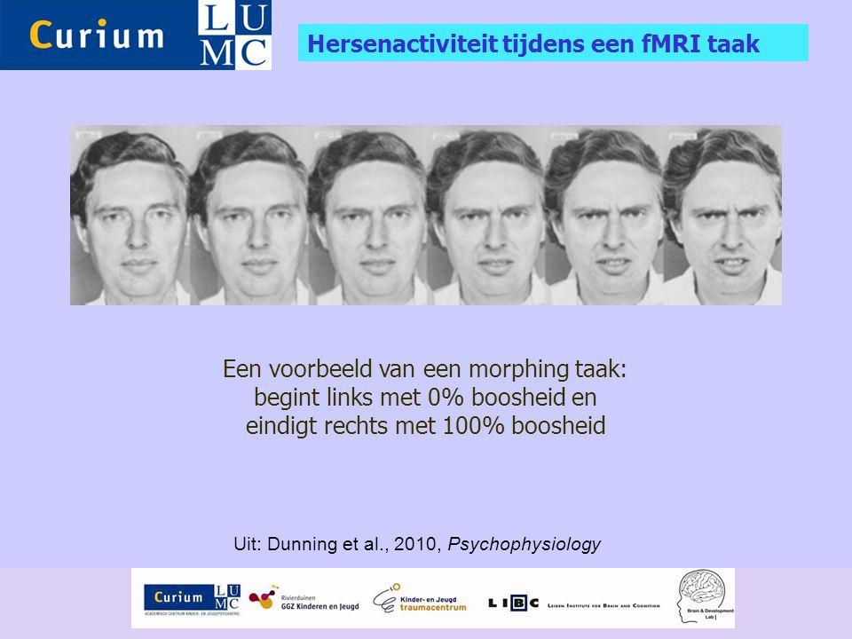 Hersenactiviteit tijdens een fMRI taak