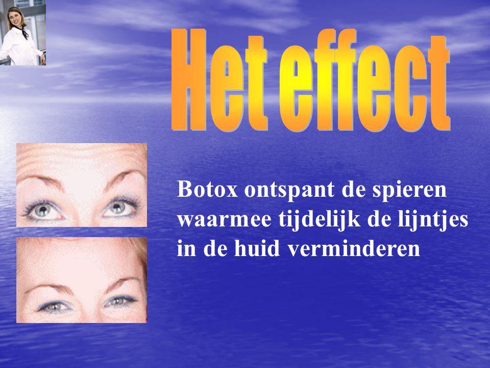 Het effect Botox ontspant de spieren waarmee tijdelijk de lijntjes in de huid verminderen
