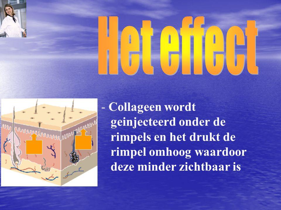 Het effect Collageen wordt geinjecteerd onder de rimpels en het drukt de rimpel omhoog waardoor deze minder zichtbaar is.