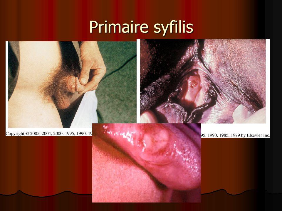 Primaire syfilis