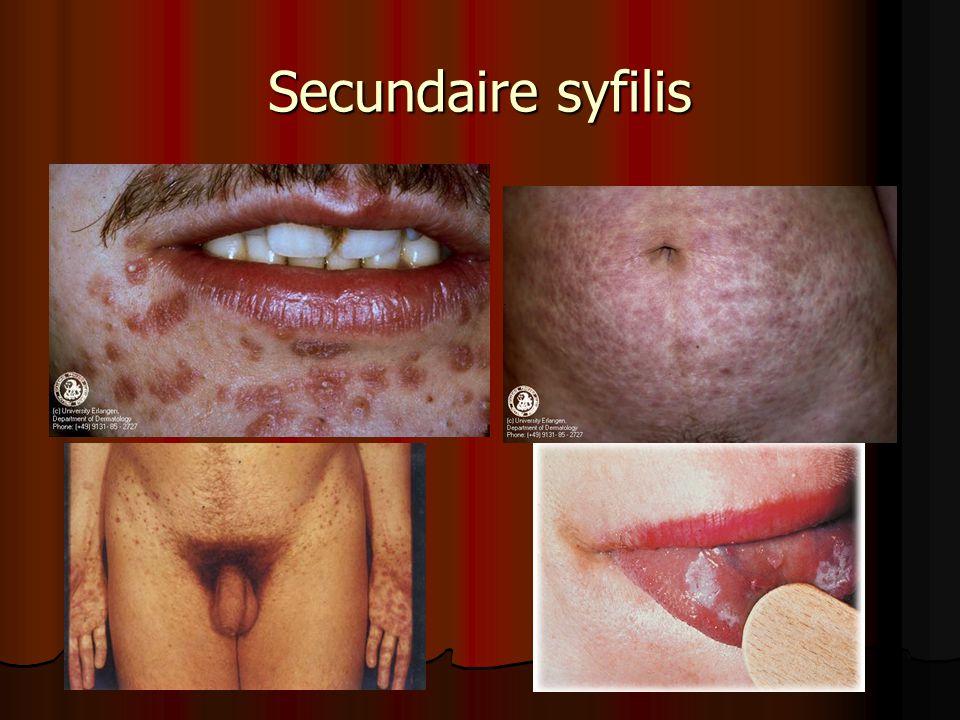 Secundaire syfilis