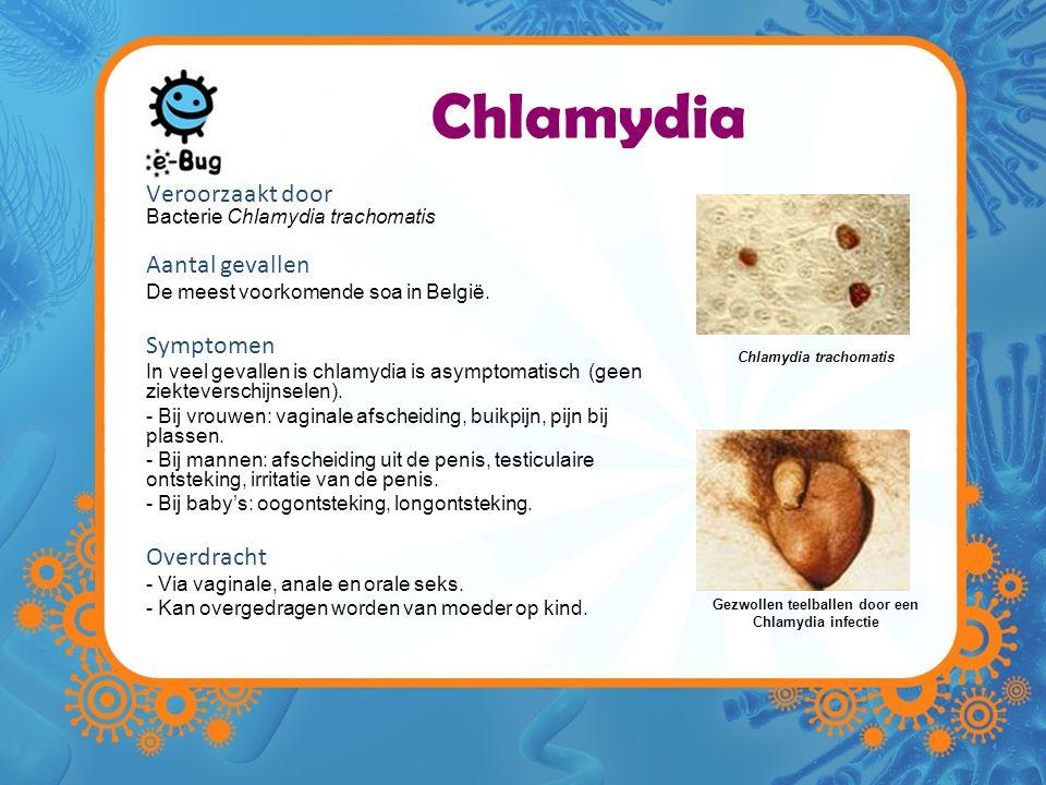 Chlamydia trachomatis Gezwollen teelballen door een Chlamydia infectie