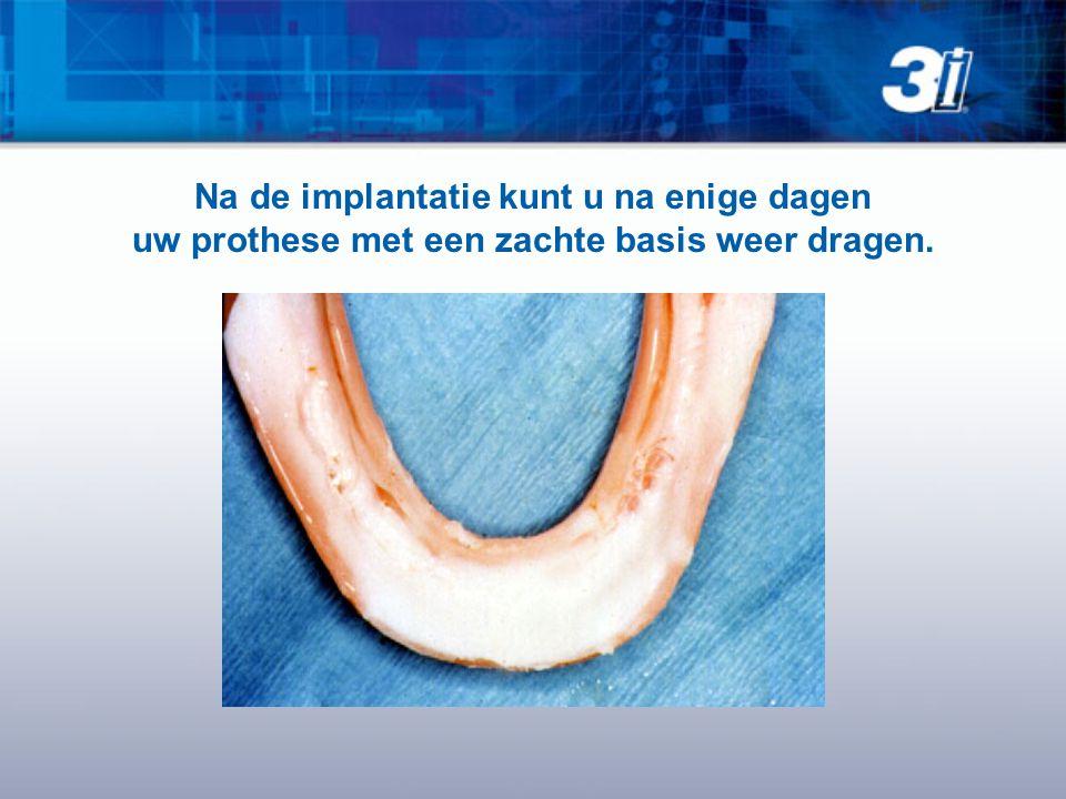 Na de implantatie kunt u na enige dagen