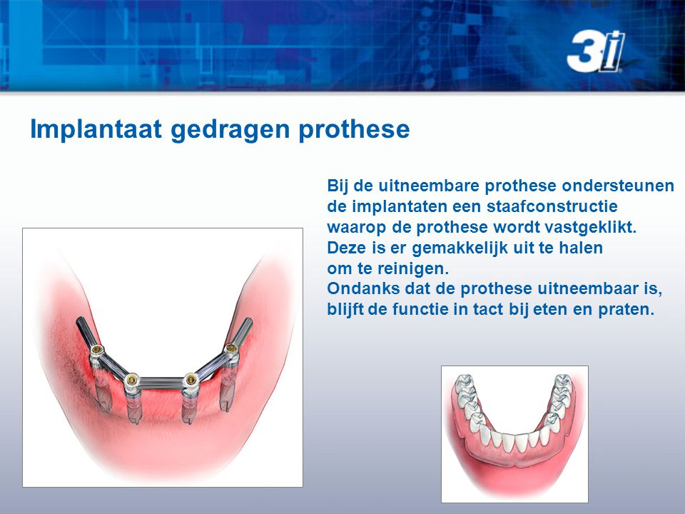 Implantaat gedragen prothese