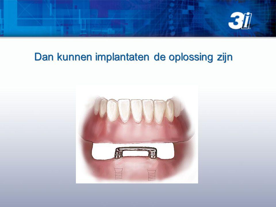 Dan kunnen implantaten de oplossing zijn