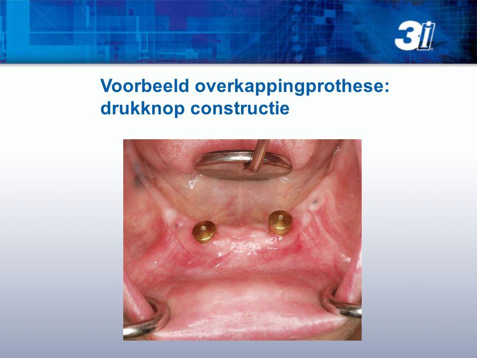 Voorbeeld overkappingprothese: