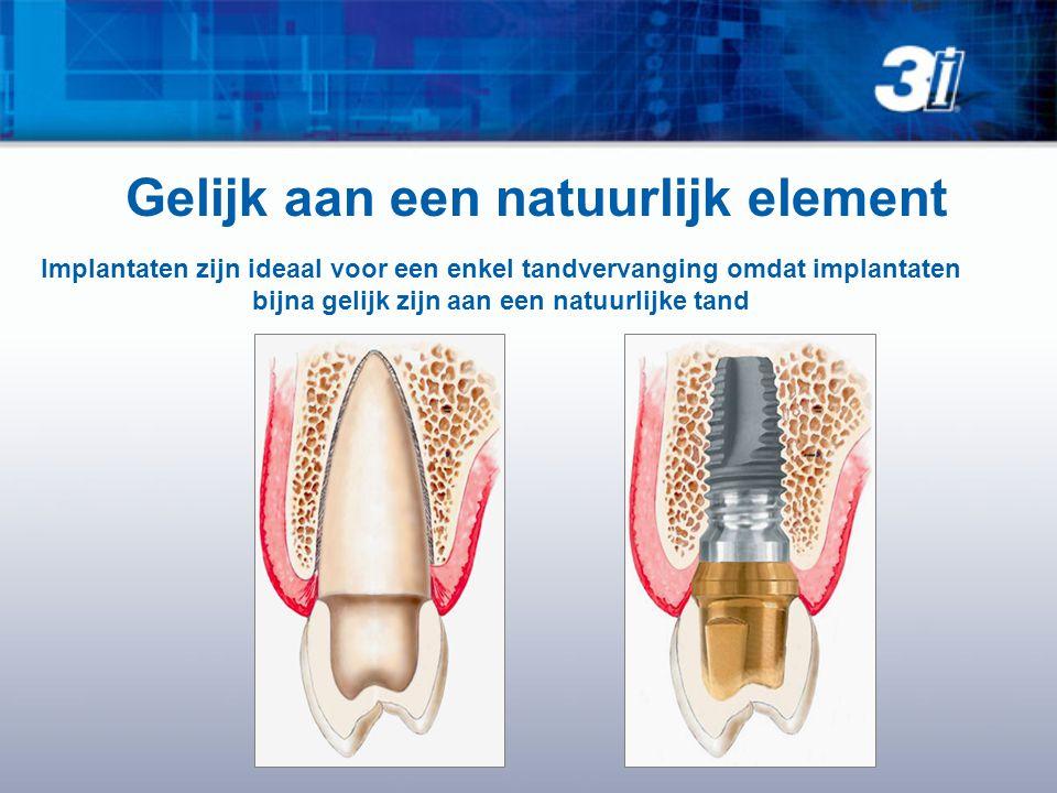 bijna gelijk zijn aan een natuurlijke tand