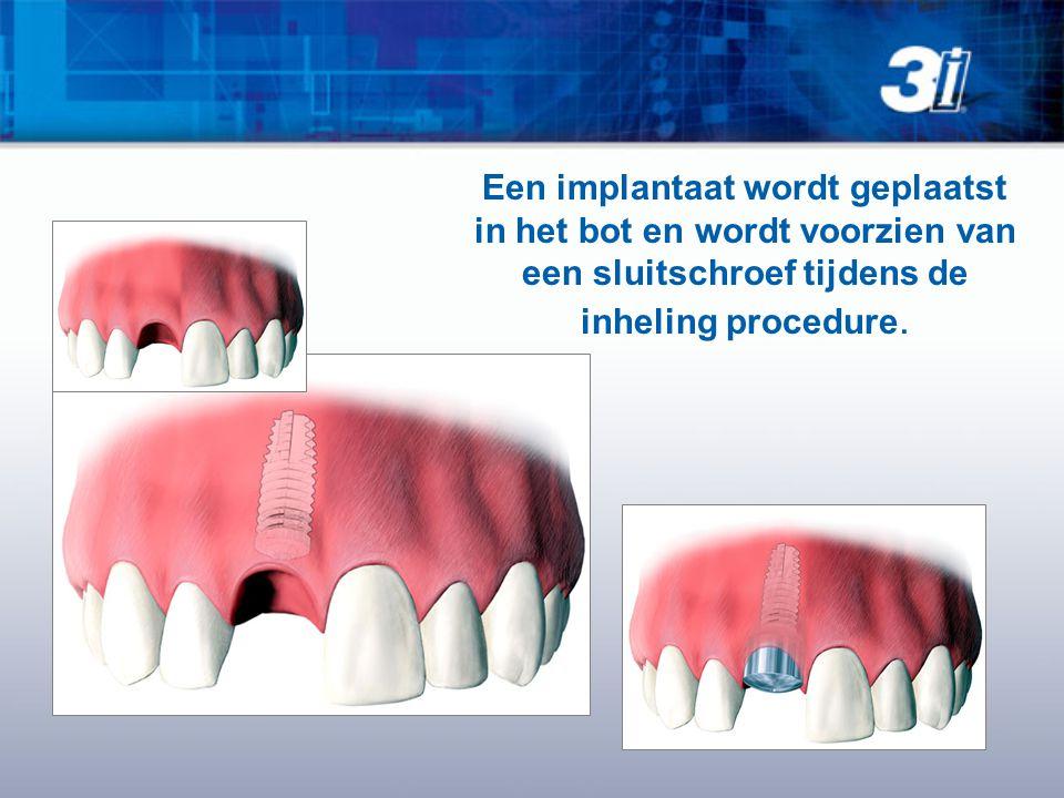 Een implantaat wordt geplaatst in het bot en wordt voorzien van