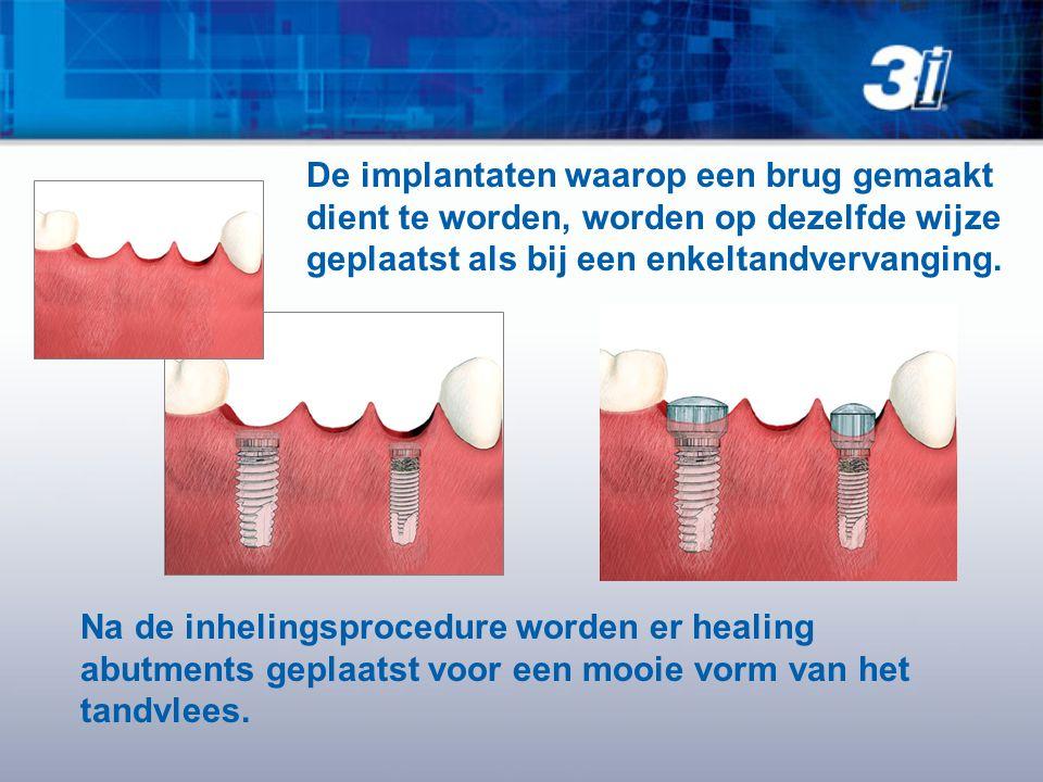 De implantaten waarop een brug gemaakt