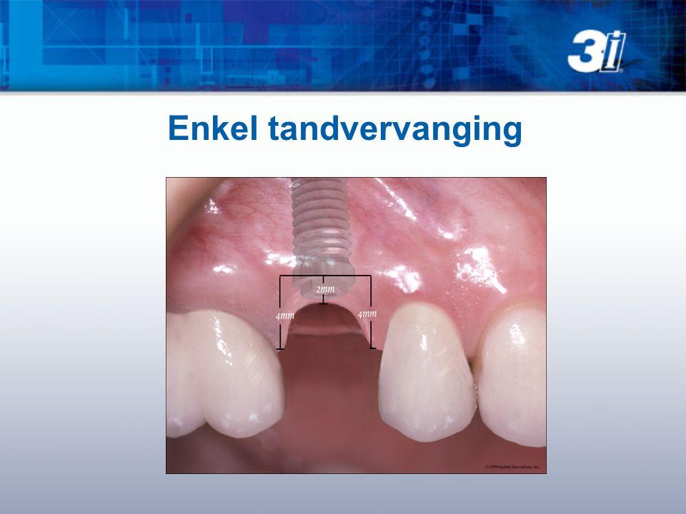 Enkel tandvervanging