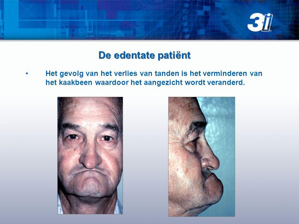 De edentate patiënt Het gevolg van het verlies van tanden is het verminderen van het kaakbeen waardoor het aangezicht wordt veranderd.