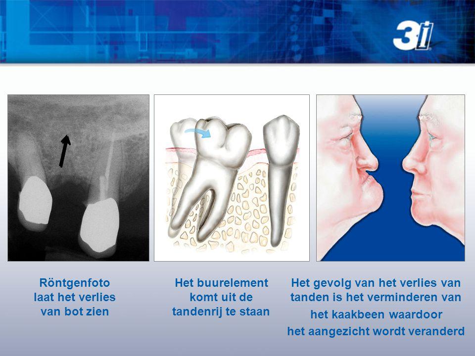 Röntgenfoto laat het verlies van bot zien