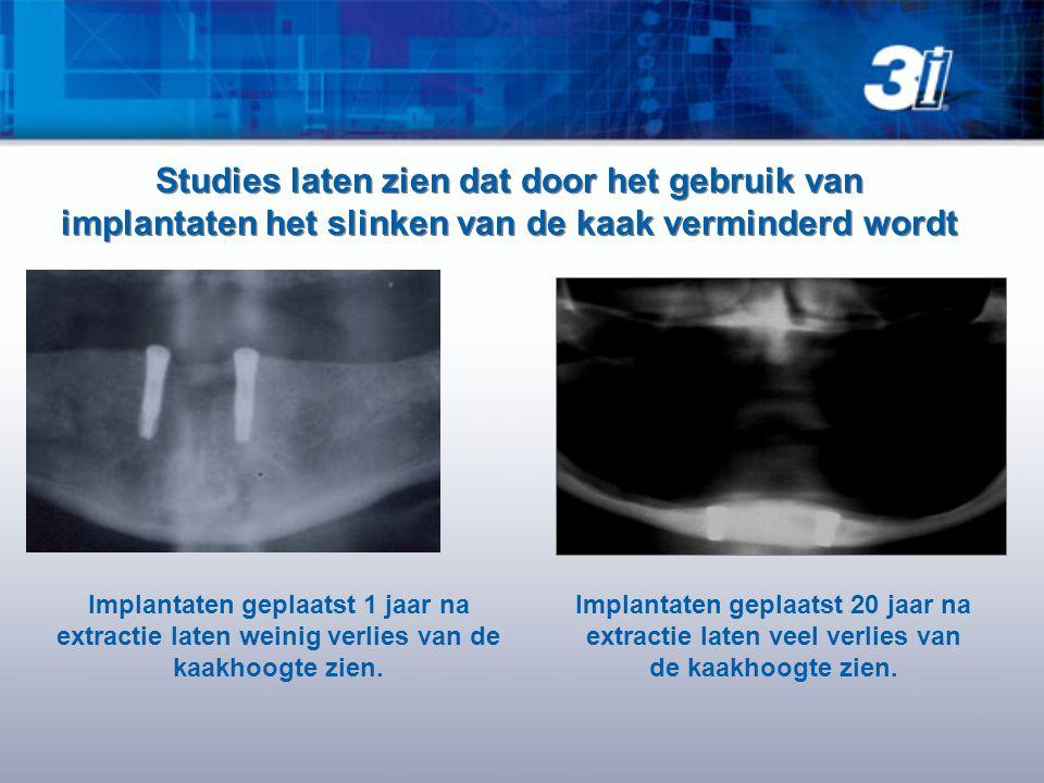 Studies laten zien dat door het gebruik van implantaten het slinken van de kaak verminderd wordt