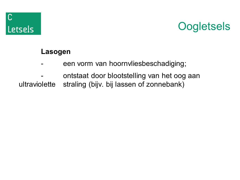 Oogletsels Lasogen - een vorm van hoornvliesbeschadiging;