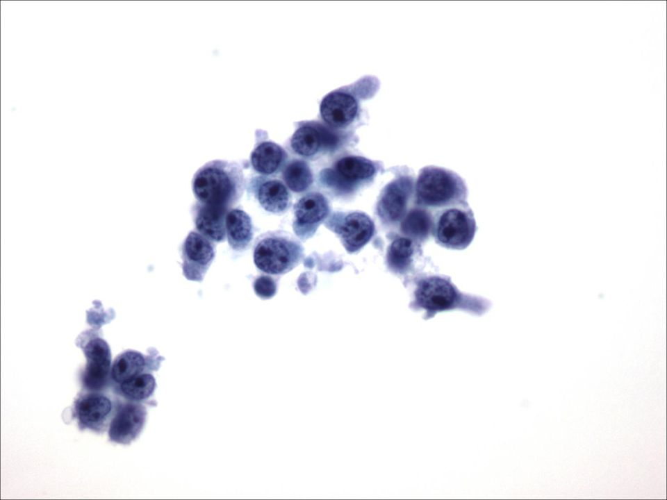 Lymfoom in CSV 40X vergroot