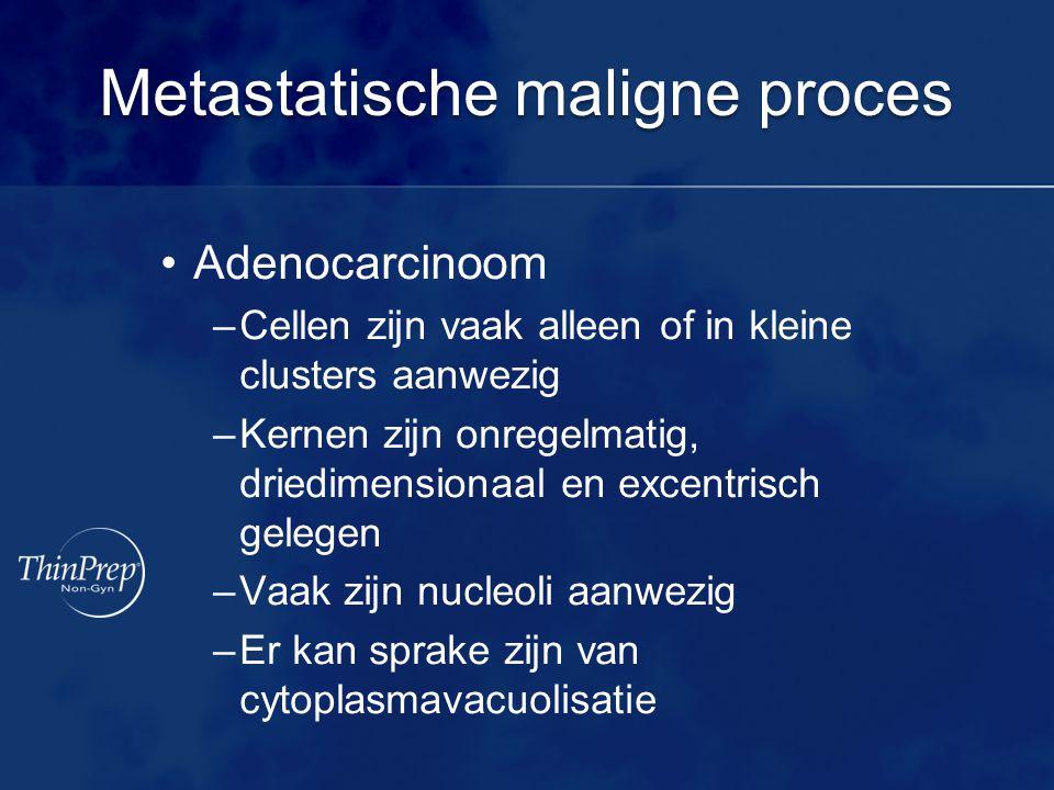 Metastatische maligne proces