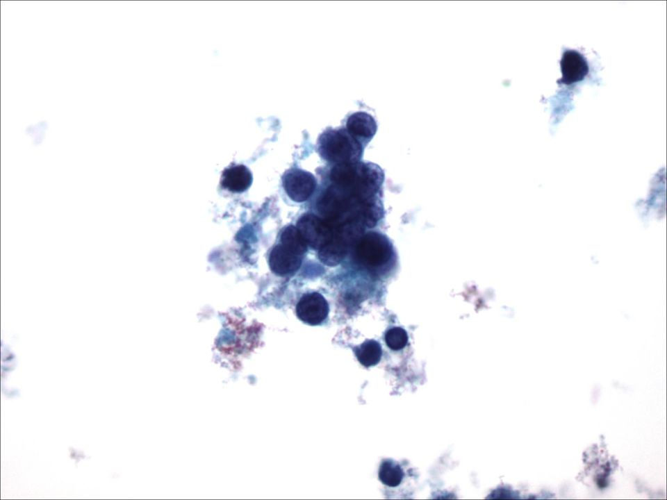 Kleincellig carcinoom in CSV 40X vergroot