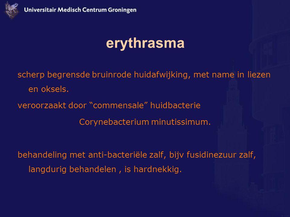 Corynebacterium minutissimum.