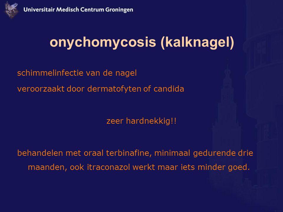 onychomycosis (kalknagel)