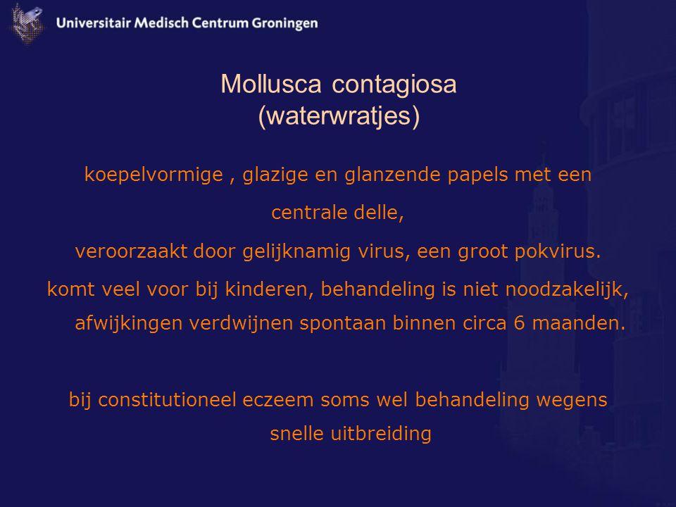 Mollusca contagiosa (waterwratjes)