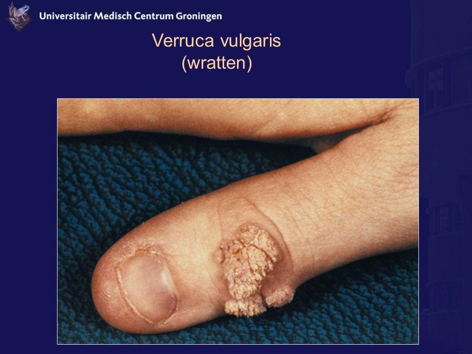 Verruca vulgaris (wratten)