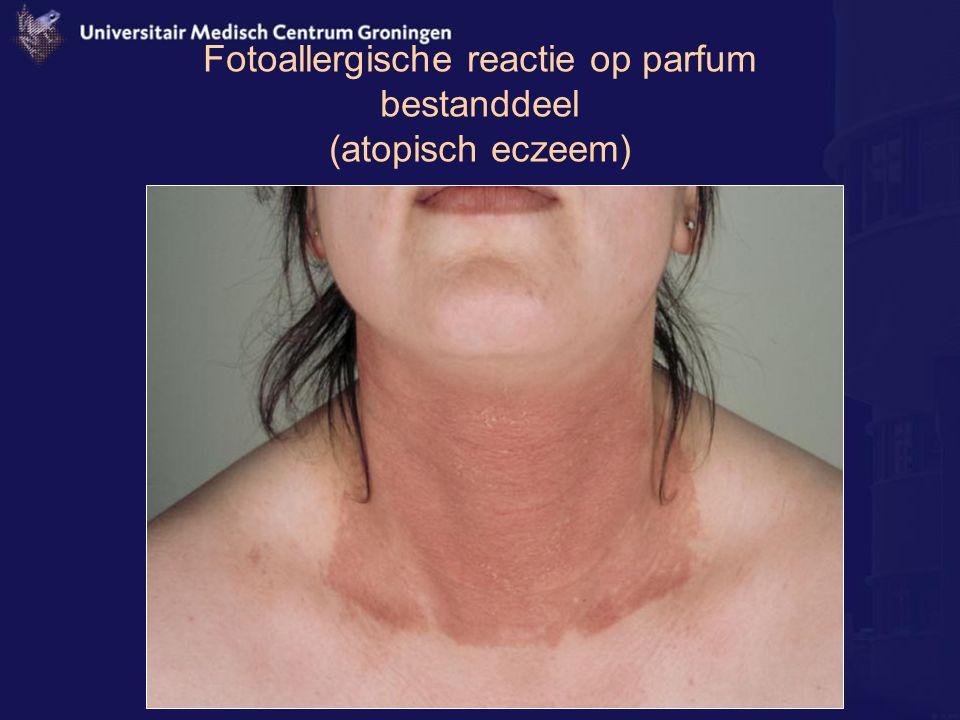Fotoallergische reactie op parfum bestanddeel