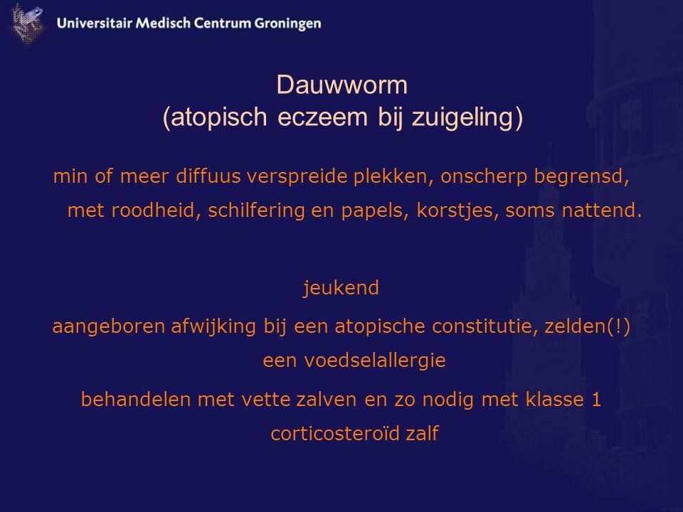 Dauwworm (atopisch eczeem bij zuigeling)