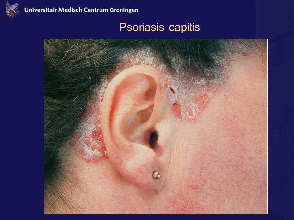 Psoriasis capitis