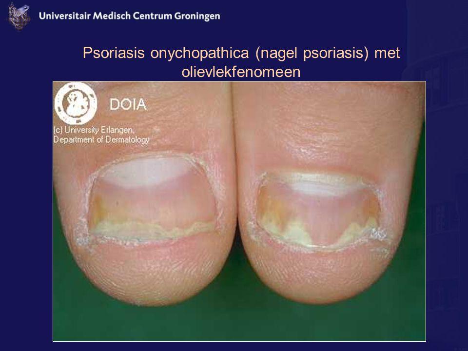 Psoriasis onychopathica (nagel psoriasis) met olievlekfenomeen