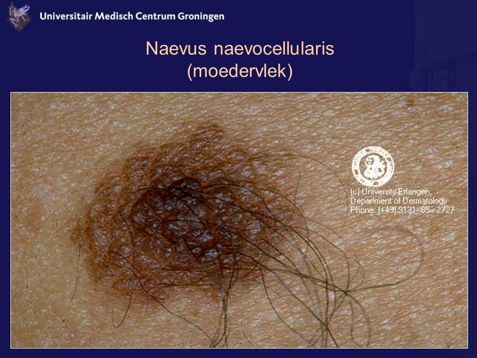 Naevus naevocellularis (moedervlek)