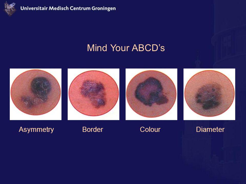 Mind Your ABCD's Asymmetry Border Colour Diameter