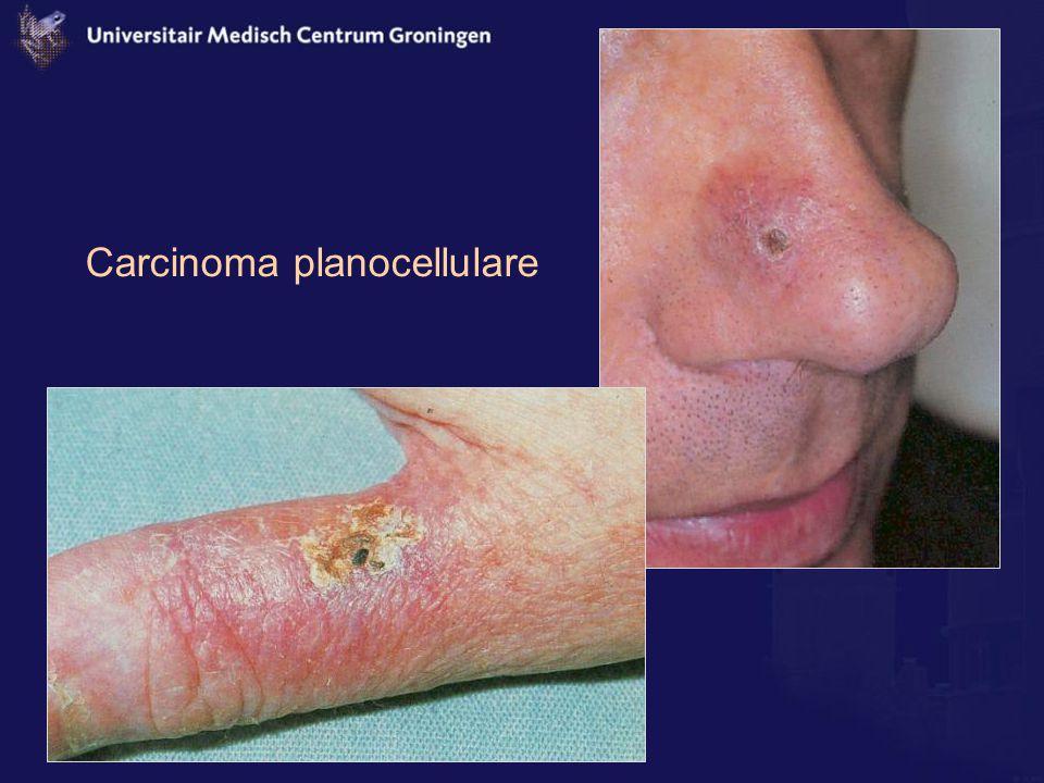 Carcinoma planocellulare