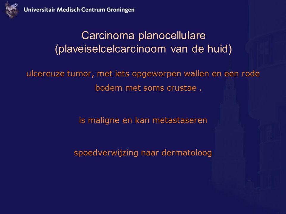 Carcinoma planocellulare (plaveiselcelcarcinoom van de huid)