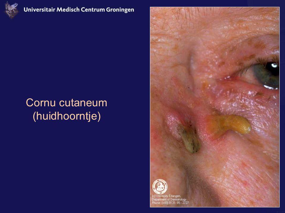 Cornu cutaneum (huidhoorntje)