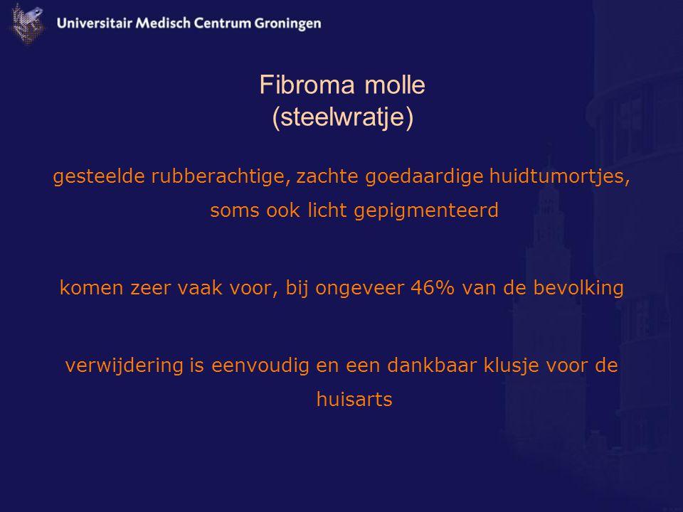 Fibroma molle (steelwratje)