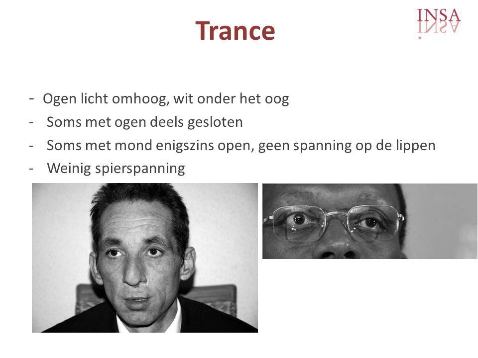 Trance - Ogen licht omhoog, wit onder het oog