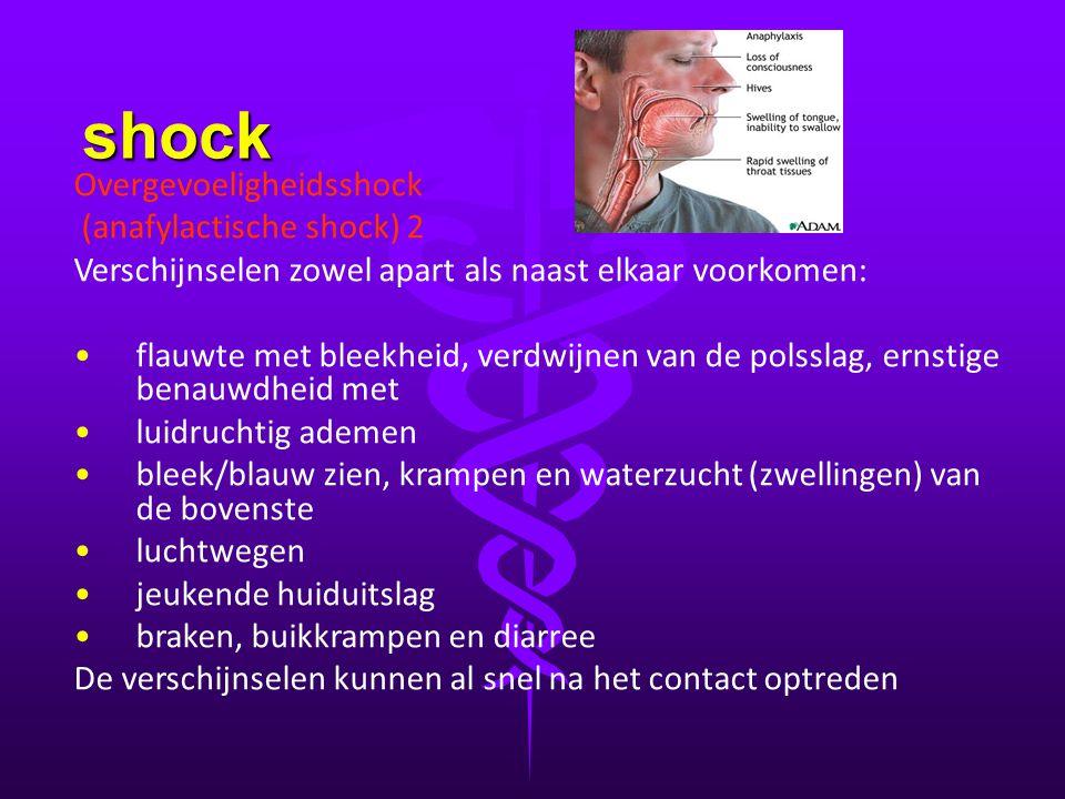 shock Overgevoeligheidsshock (anafylactische shock) 2