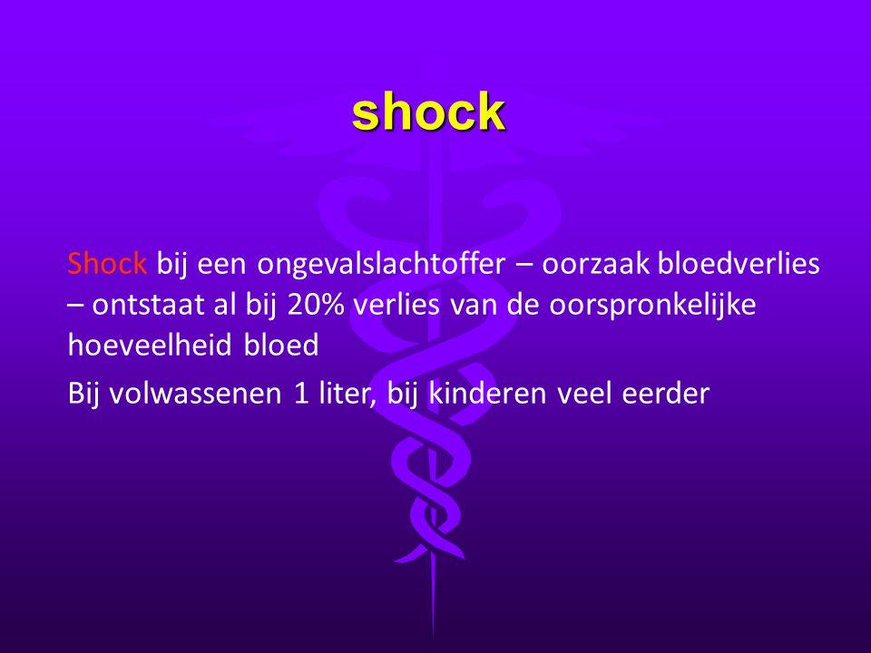 shock Shock bij een ongevalslachtoffer – oorzaak bloedverlies – ontstaat al bij 20% verlies van de oorspronkelijke hoeveelheid bloed.