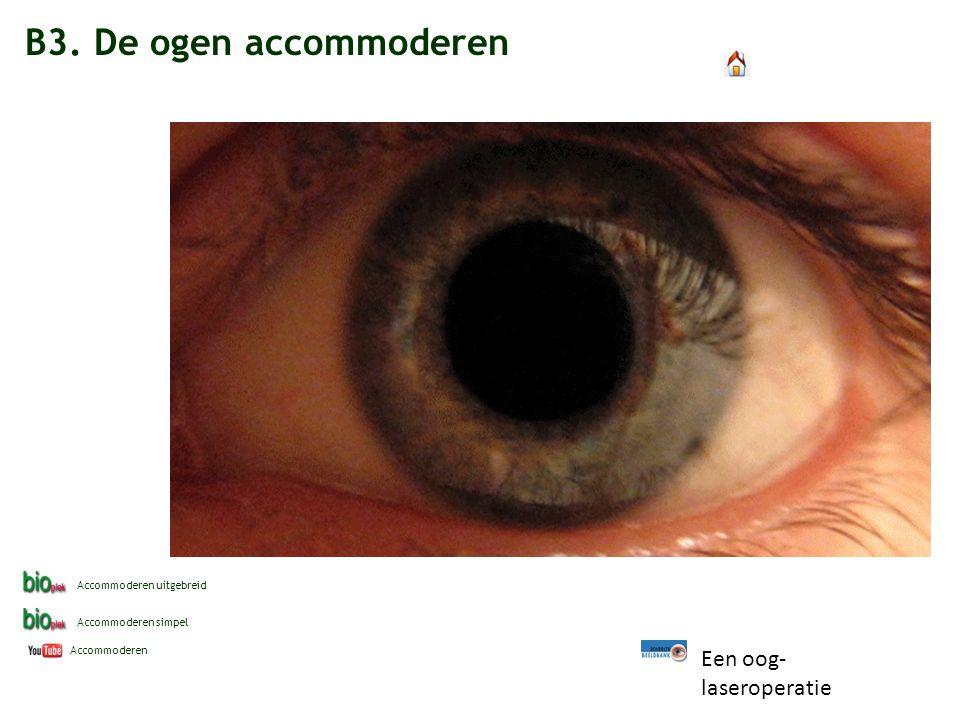 B3. De ogen accommoderen Een oog-laseroperatie Accommoderen uitgebreid