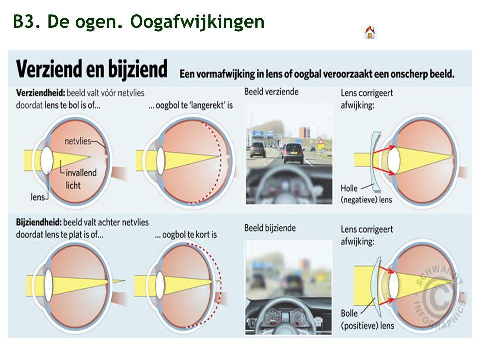 B3. De ogen. Oogafwijkingen