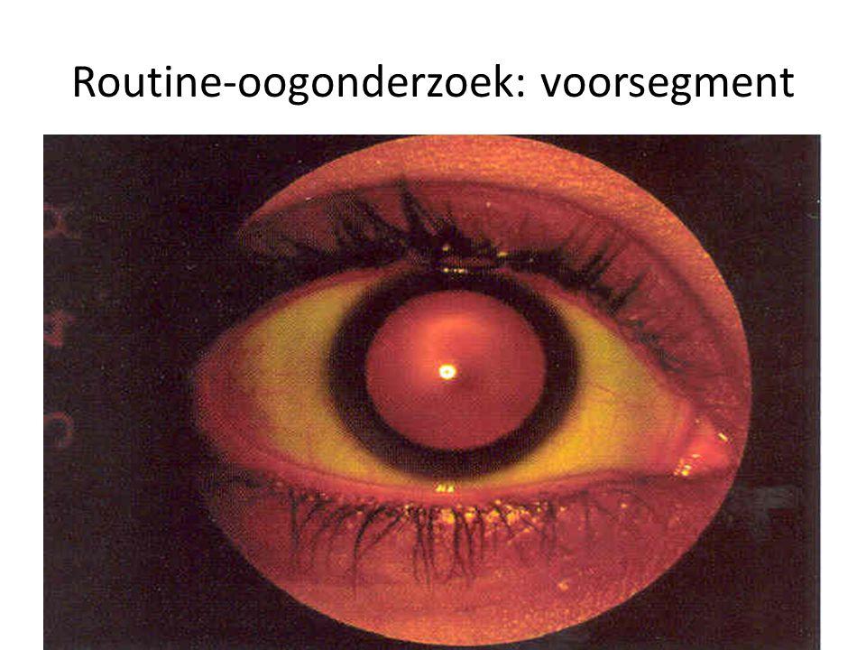 Routine-oogonderzoek: voorsegment