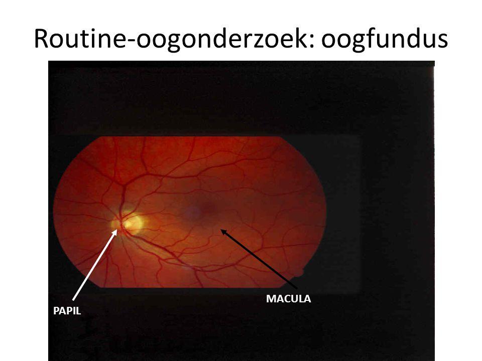 Routine-oogonderzoek: oogfundus