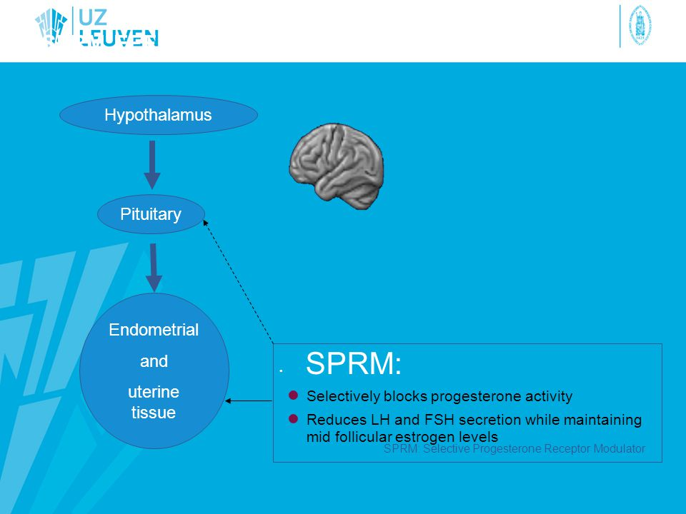 SPRM effect on the pituitary