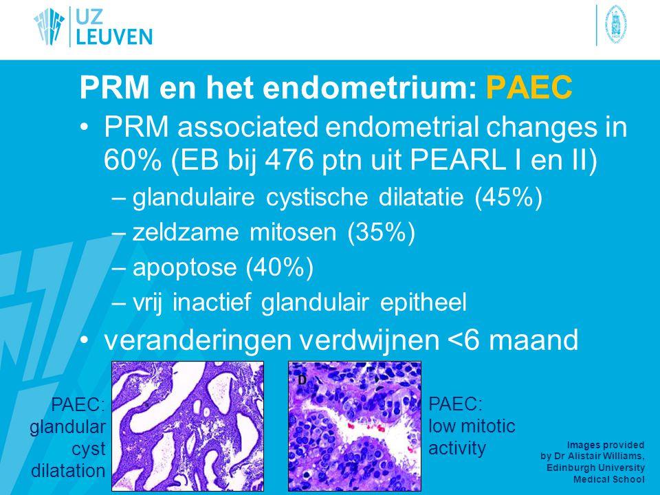 PRM en het endometrium: PAEC