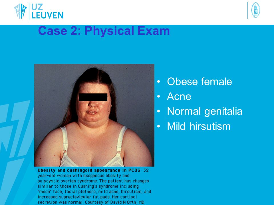 Case 2: Physical Exam Obese female Acne Normal genitalia