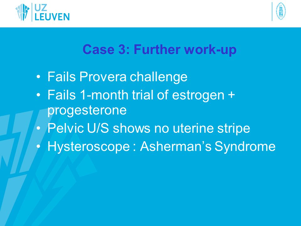 Case 3: Further work-up Fails Provera challenge. Fails 1-month trial of estrogen + progesterone. Pelvic U/S shows no uterine stripe.