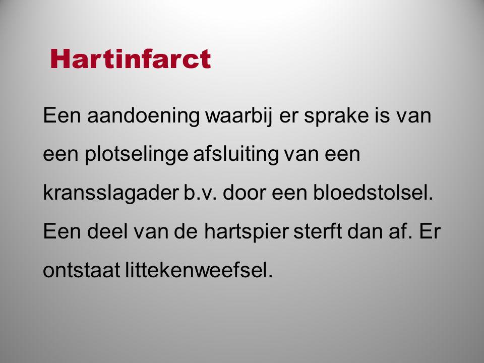 Hartinfarct Een aandoening waarbij er sprake is van een plotselinge afsluiting van een kransslagader b.v. door een bloedstolsel.